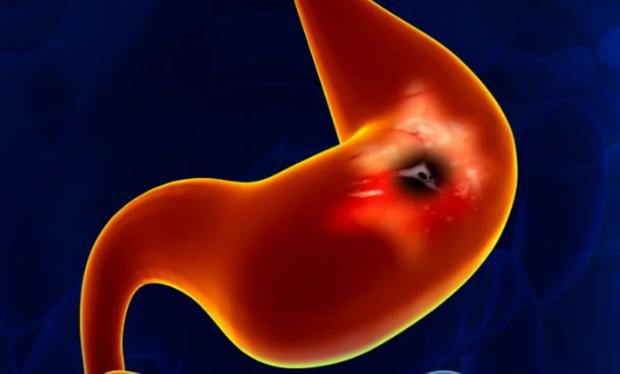 Эпителий желудка: функции и заболевания