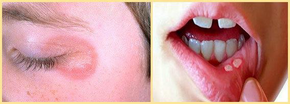 Бура в глицерине: инструкция по применению, лечение взрослых и детей