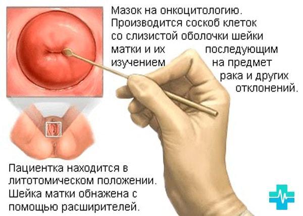 Хламидии у женщин: симптомы и лечение, причины возникновения