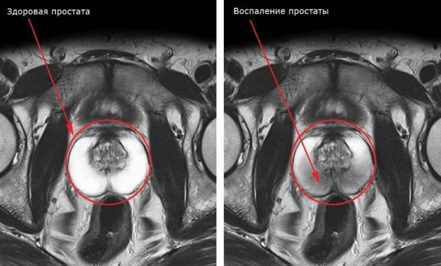 Что из себя представляет МРТ простаты Плюсы и минусы этой процедуры