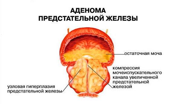 Как делается операция по удалению аденомы простаты (предстательной железы)?