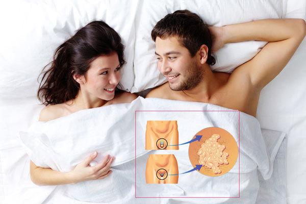 Как передается и как можно заразиться ВПЧ (вирус папилломы человека, папилломавирус)