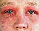 Аллергия на косметику: симптомы и что делать