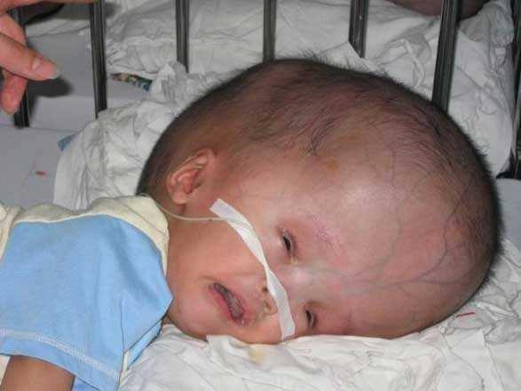 Внутричерепное давление у новорожденных: признаки и лечение
