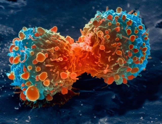 Вирус папилломы человека (ВПЧ) 33 типа у женщин: что это такое, симптомы, лечение