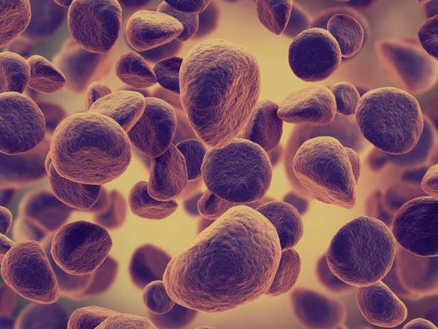 Симптомы лейкоза крови у взрослых: прогноз, лечение, причины, диагностика