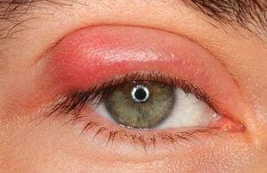 Как и чем лечить чирей на глазу?