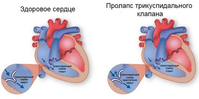Пролапс трикуспидального клапана, пролапс трехстворчатого клапана