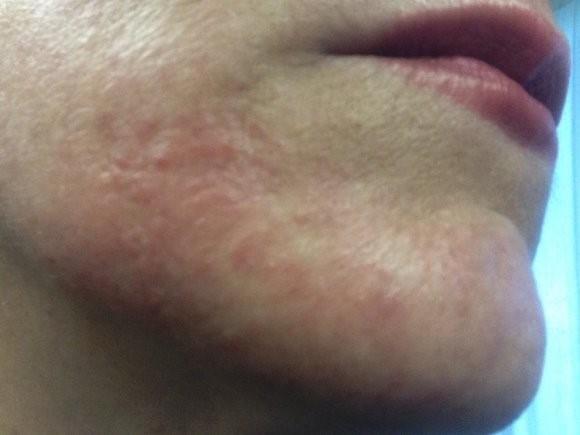 Нейродермит – симптомы и причины аллергически-неврологического заболевания