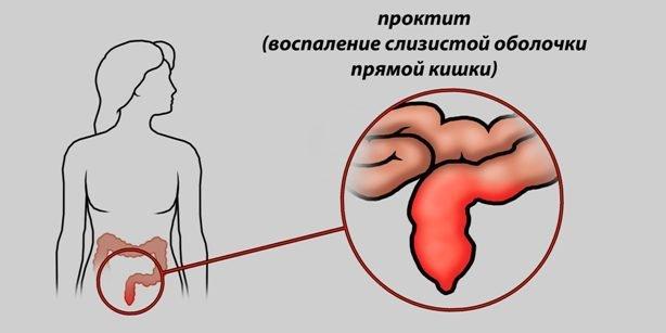 Кровотечение из заднего прохода при стуле без боли