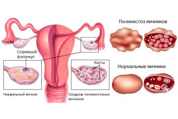 Повышен Андростендион у женщин: что это такое, причины, какова норма ?