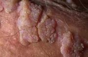 Остроконечные кондиломы у мужчин: причины, симптомы, лечение