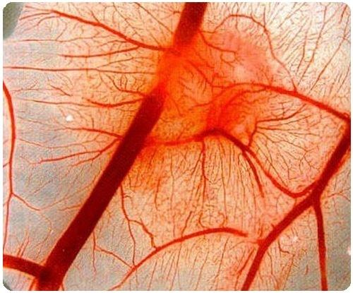 Грибковый бронхит: симптомы и лечение
