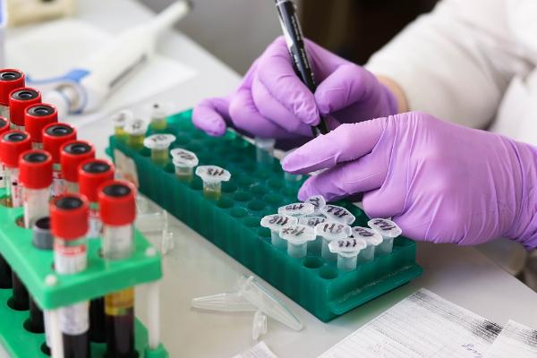 Как сдавать общий анализ крови