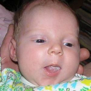 Белый налет на языке у грудничка: причины и методы лечения