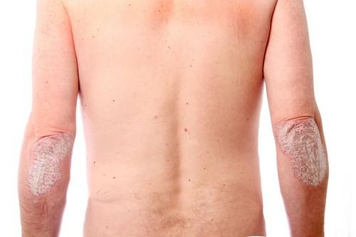 Экссудативный псориаз - лечение, симптомы и профилактика
