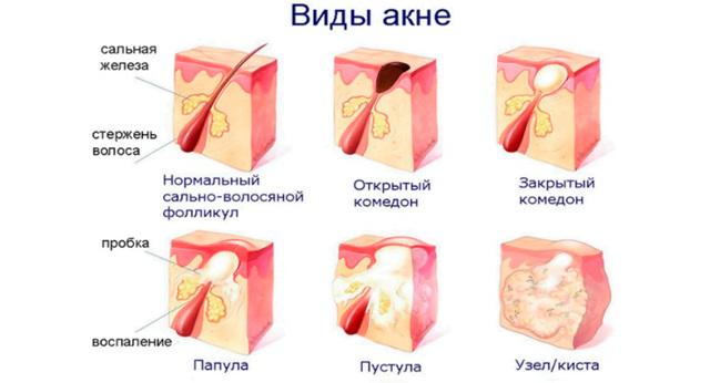 Пупырышки на половых губах