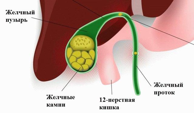 Взвесь в желчном пузыре: эхогенная, мелкодисперсная, гиперэхогенная, хлопьевидная - лечение, содержимое, препараты, симптомы, что это, как убрать