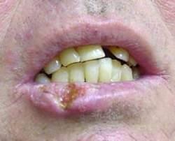 Рак губы: причины, симптомы, лечение, стадии