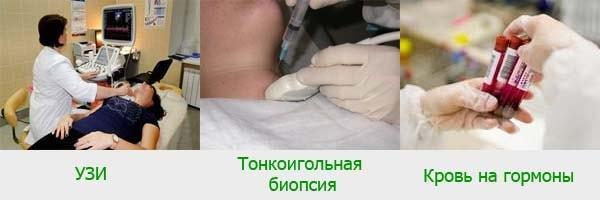 Диффузно-узловой зоб щитовидной железы
