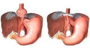 Гастроэзофагеальный пролапс слизистой желудка и пищевода