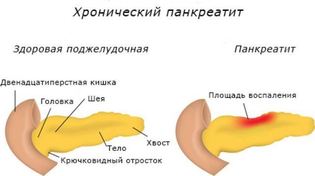Анализ мочи на диастазу
