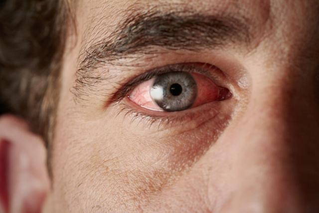Хламидиоз глаз: причины, симптомы, лечение