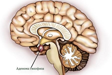 Аденома гипофиза головного мозга у женщин и мужчин: симптомы и лечение, прогнозы
