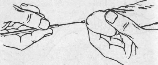 Взятие мазка на трихомониаз: техника, показания