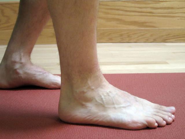 Как лечить дома артрит