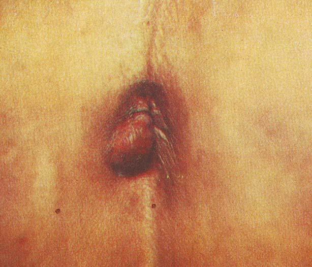 Геморрой без крови: может ли быть геморрой без крови, особенности развития, лечение, профилактика (диета, гигиена, упражнения)