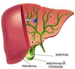 Дискинезия желчного пузыря: лечение, симптомы, типы, диета, признаки, боли, перегибы, формы (гипомоторная, гипотоническая, гиперкинетическая)