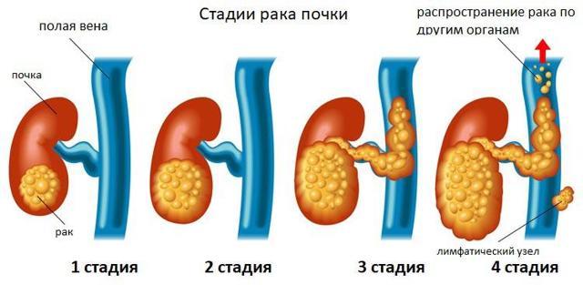 Рак почки: симптомы и признаки, классификация, лечение