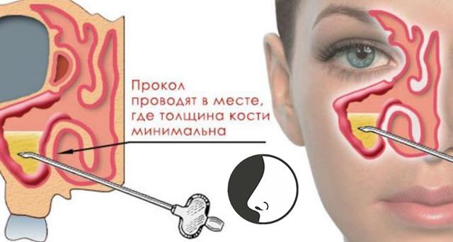 Лечение гайморита без проколов