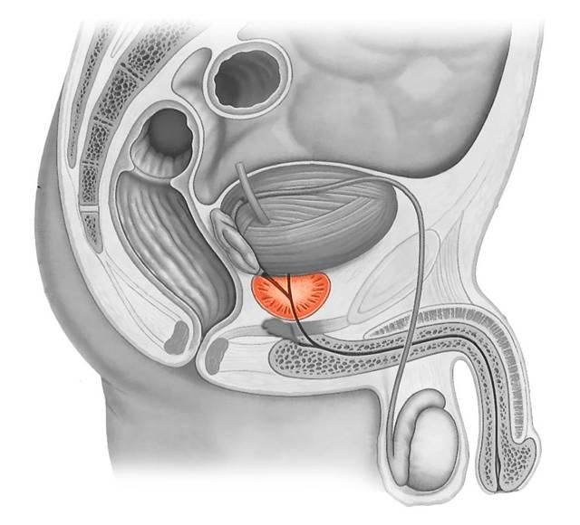 ПСА при аденоме предстательной железы: показания, подготовка и сдача анализа, норма при лечении, после удаления в зависимости от возраста, как снизить