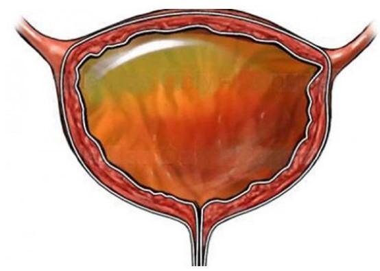 Лейкоплакия мочевого пузыря