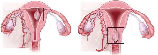 Удаление полипа эндометрия: осложнения и последствия