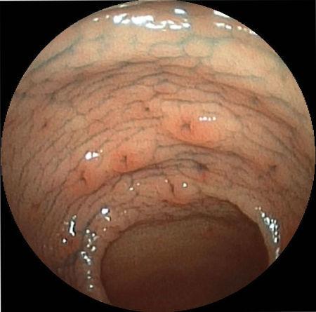 Эрозия желудка, причины и симптомы, диагностика и лечение