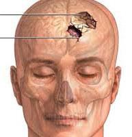 Черепно мозговая травма (закрытая, открытая): первая помощь, последствия, лечение, симптомы, классификация, МКБ 10, у детей и взрослых