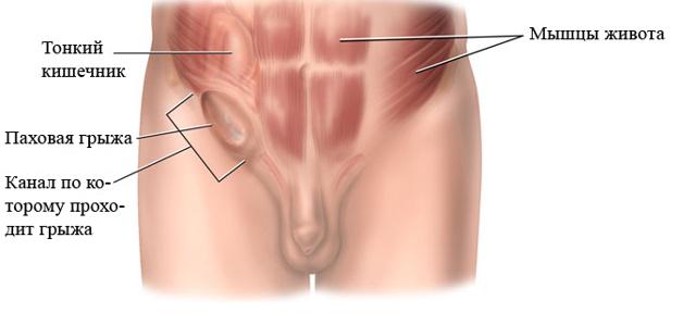 Болит правое, левое яичко у мужчины: причины, что делать если опухло?