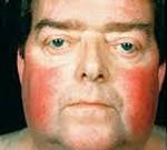 Гиперкортицизм (синдром Иценко—Кушинга): что это такое, симптомы
