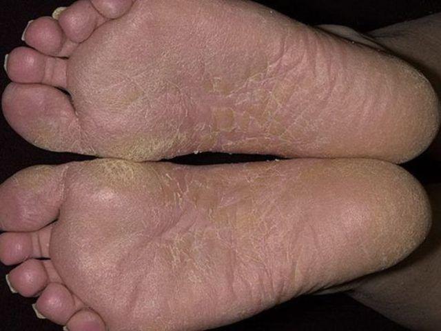 Экзема на ногах – лечение стоп