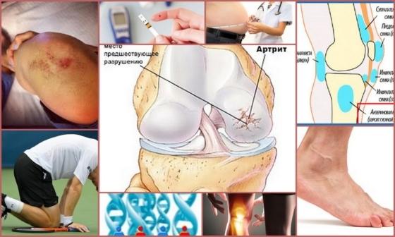 Какие есть обезболивающие для коленных суставов мази