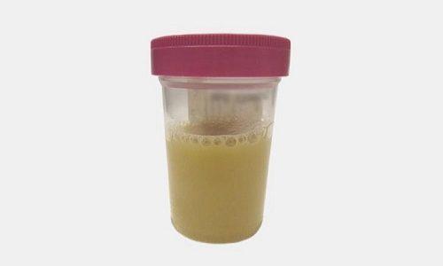 Анализы при панкреатите: лабораторные методы исследования (кала, крови, мочи) и функциональные тесты, результаты