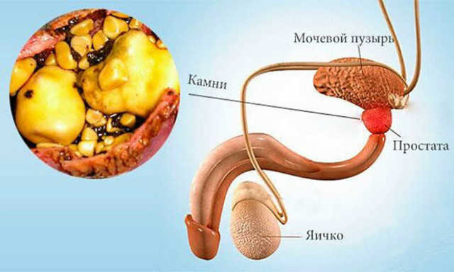 Кальцинаты в предстательной железе: классификация, симптомы, причины, лечение (препараты, народные средства, операция), последствия и осложнения