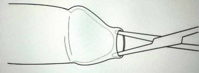 Фимоз: что делать если головка не открывается, причины и лечение сужения крайней плоти