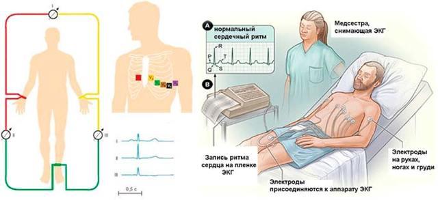 Экг при гипертонической болезни по стадиям прогрессирования