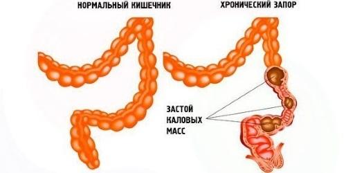 Неполное опорожнение мочевого пузыря у мужчин