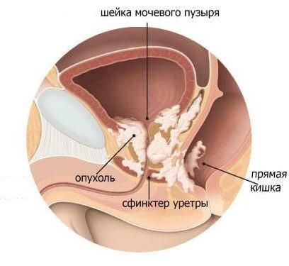 Боль при раке простаты: симптомы, причины, лечение на 4 стадии (медикаменты, народные средства)