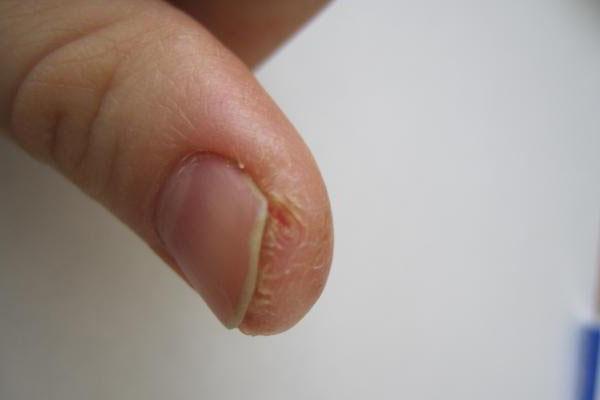 Трескается кожа на подушечках пальцев рук: причины и лечение